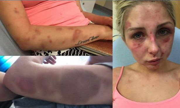 Authorities Outraged At Man's Excuse For Why He Beat His Girlfriend Senseless [PHOTOS]