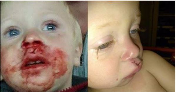 Images Of Bloodied Toddler Provoke Outrage, Now Things Have Taken A Turn (Photos)
