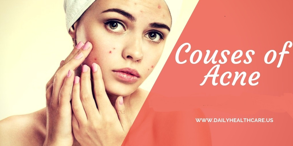 acne skin diseases solution, main courses of Acne