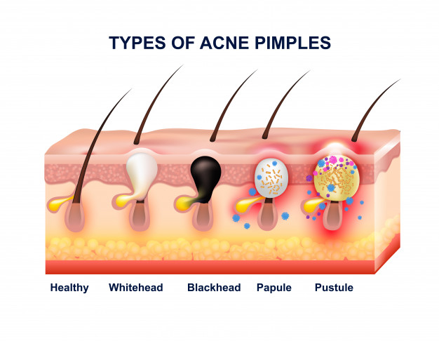 Acne: types, causes, remedies and treatment for acne 2 - Daily Medicos