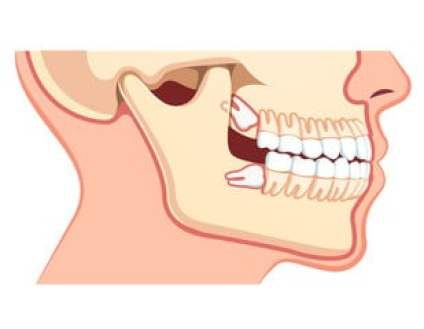 Sore Throat And The Wisdom Tooth Surgery 2 - Daily Medicos