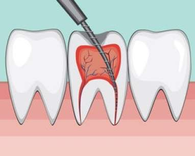 Sore Throat And The Wisdom Tooth Surgery 3 - Daily Medicos