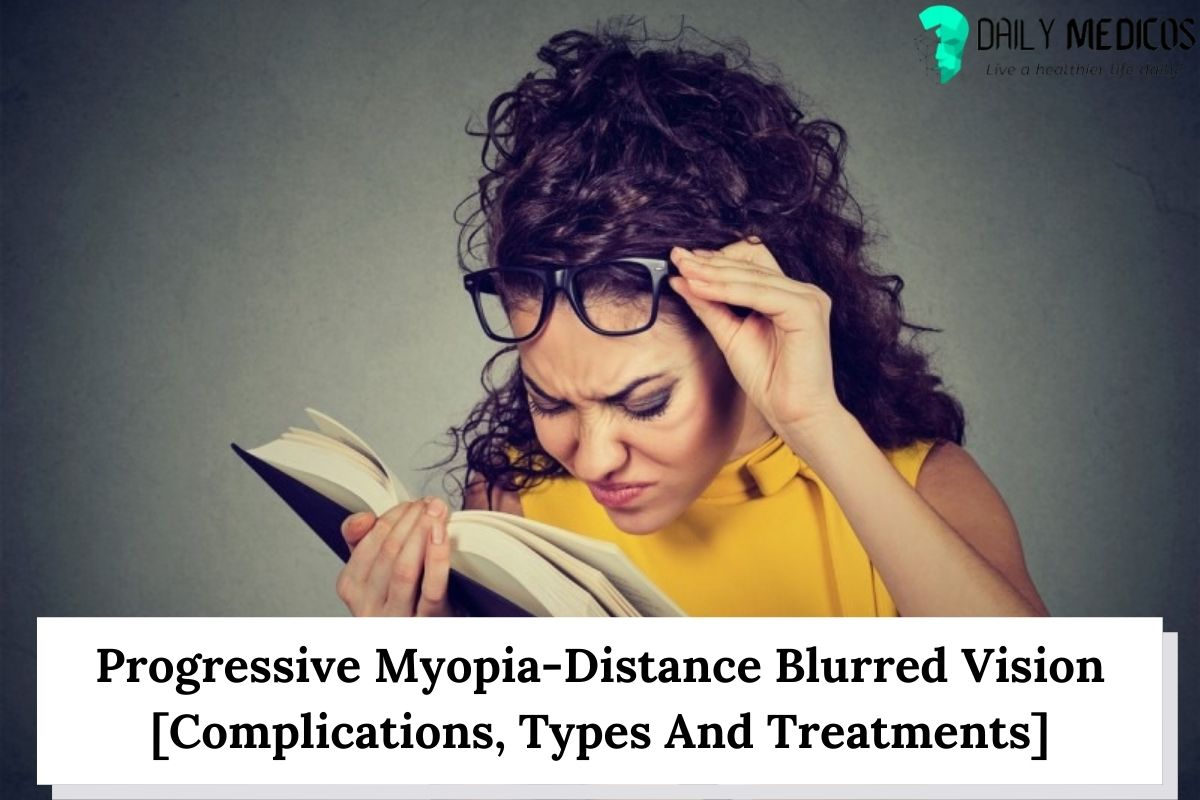 Progressive Myopia-Distance Blurred Vision [Complications, Types And Treatments] 7 - Daily Medicos
