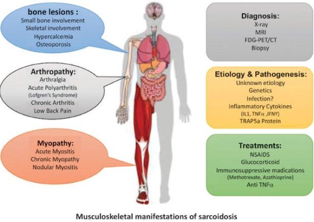 Lofgren Syndrome: Causes, Symptoms, & Treatment 2 - Daily Medicos