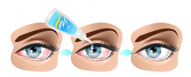 Sagging eye syndrome: Causes, Symptoms, Diagnosis & Treatment 2 - Daily Medicos
