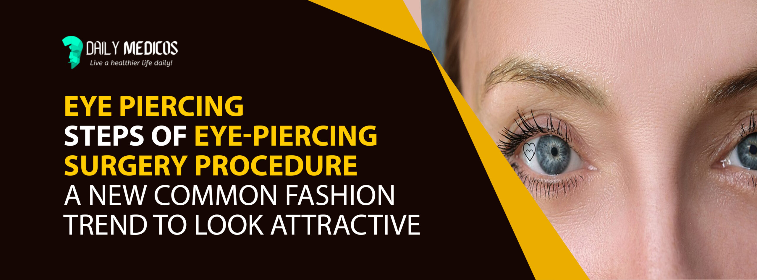 Eye Piercing: Steps of Eye-piercing Surgery Procedure [A new common fashion trend to look attractive] 1 - Daily Medicos