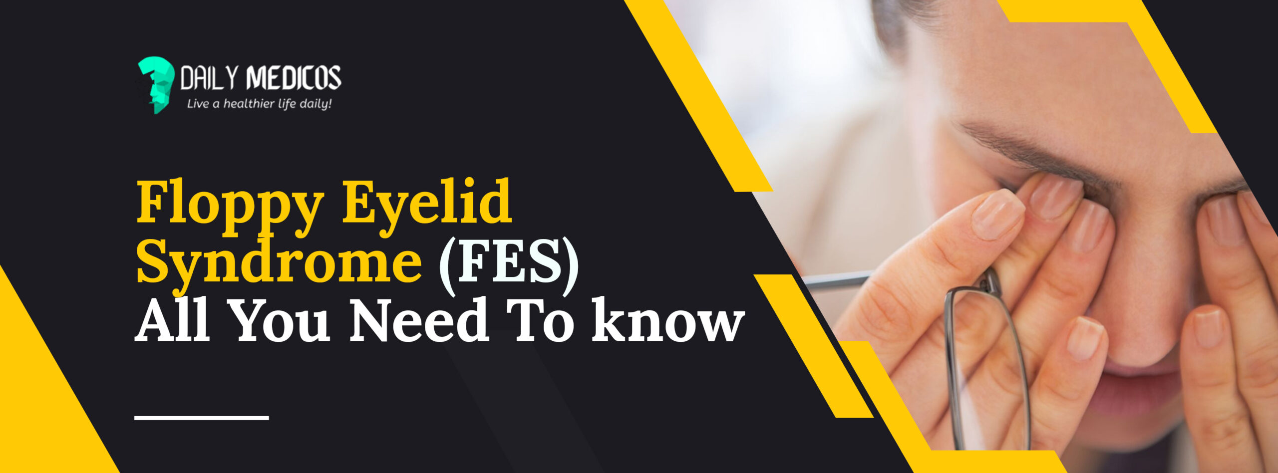 Floppy Eyelid Syndrome (FES): Causes, Symptoms, & Treatment 59 - Daily Medicos