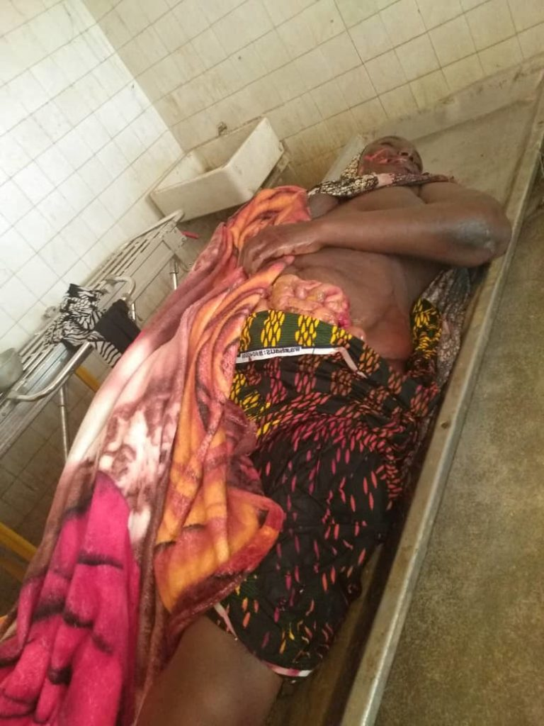 In Adamawa, husband hacks wife to death, allegedly harvests some body parts for ritual