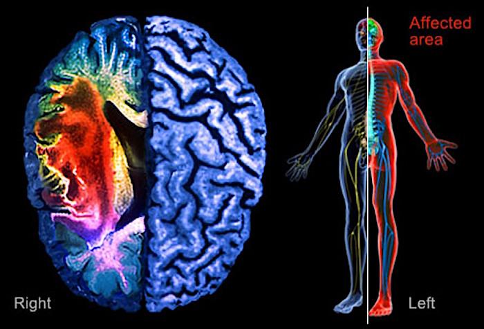Researchers develop human stroke prediction tool