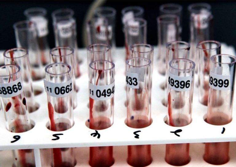 People with 'type A' blood more vulnerable to coronavirus, China study reveals