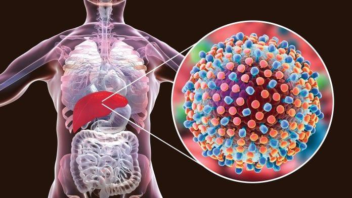 18m Nigerians Infected with hepatitis virus – Prof. Malu