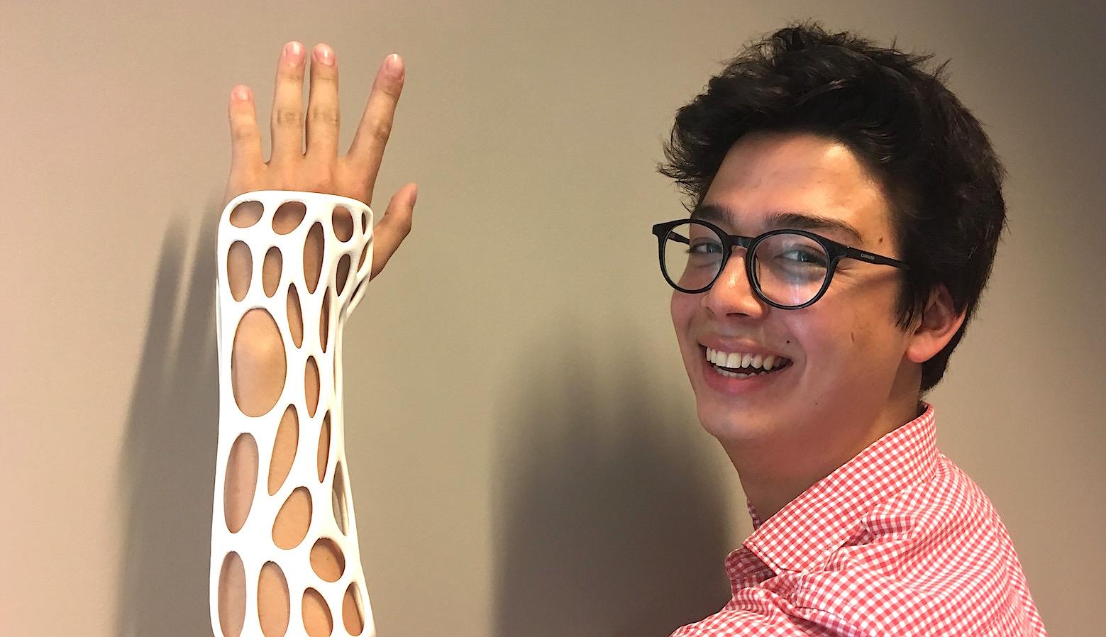 """Spentys propose un """"plâtre"""" sur mesure et imprimé en 3D."""