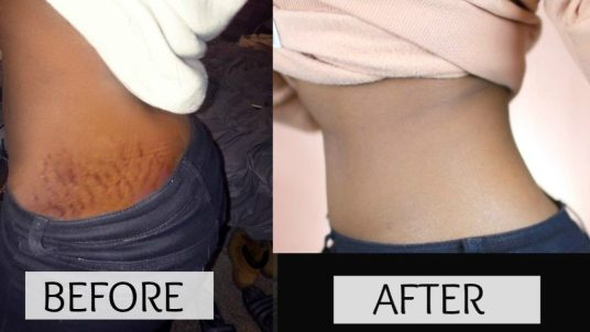 Fast Stretch Marks Removal Remedies