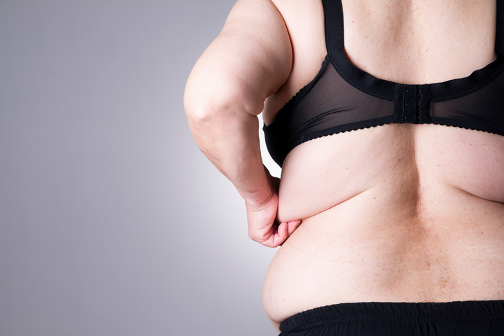 female body with excess fat