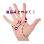 ②手相の頭脳線(知能線)上にあるほくろ占い