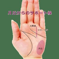 小指側から出る太陽線のサポート線