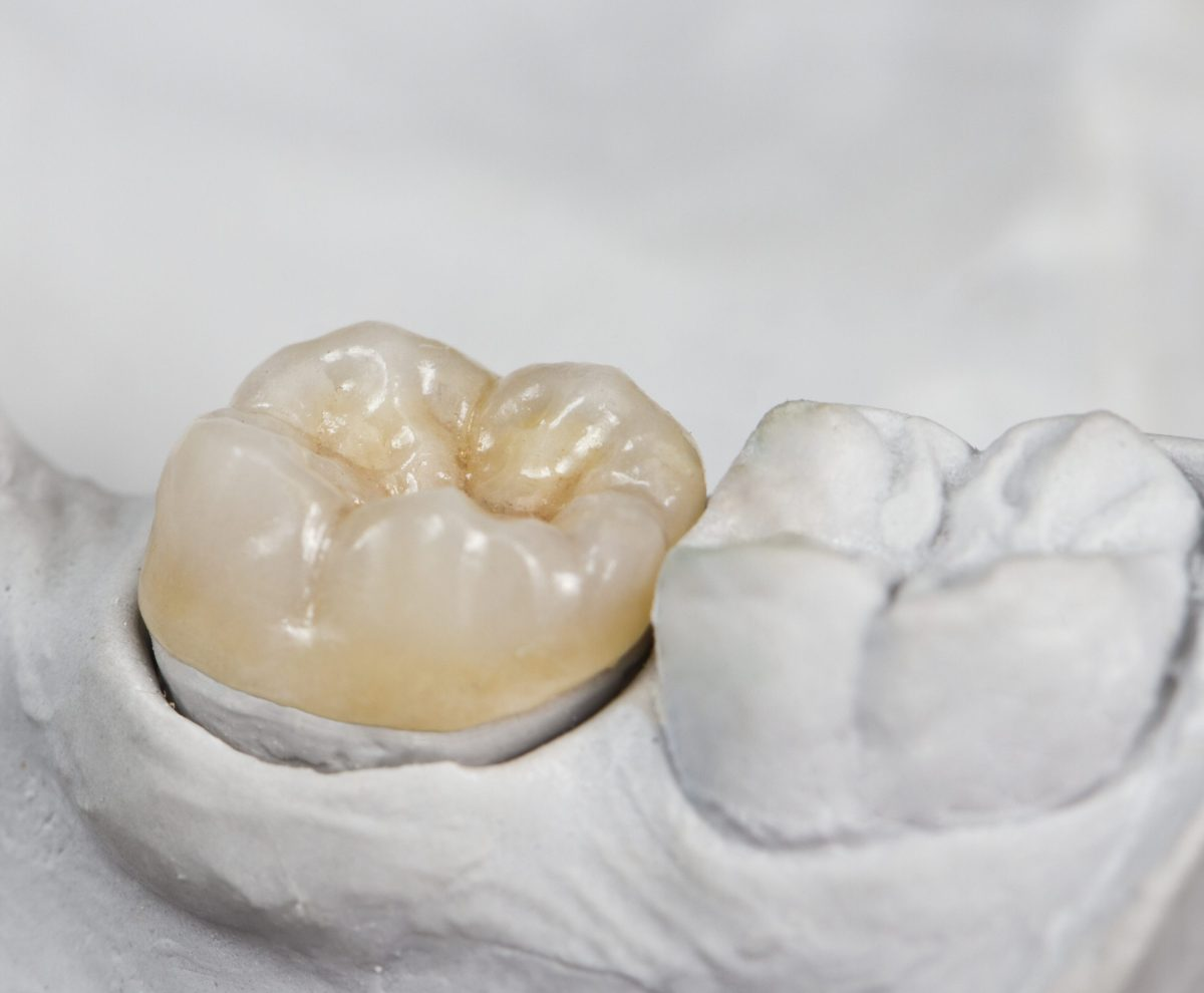 dental crown on a cast model in lake forest ca