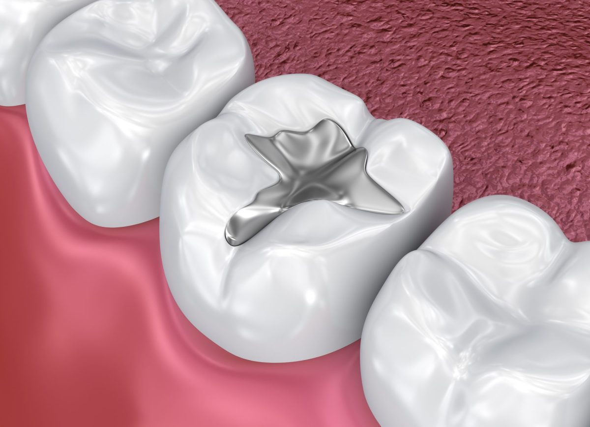 Dental fissure amalgam silver fillings in lake forest ca