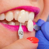Dental veneer color matching in lake forest