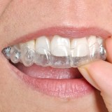 dental patient with invisalign braces in lake forest ca