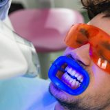 Teeth whitening Procedure with curing light in lake forest ca