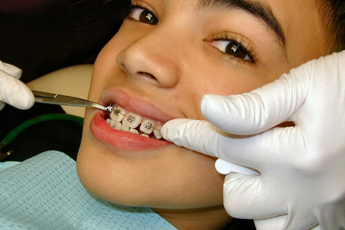 braces procedure by dentist in lake forest