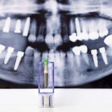 dental implant x-ray in lake forest dental office
