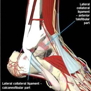 Ankle injury diagram