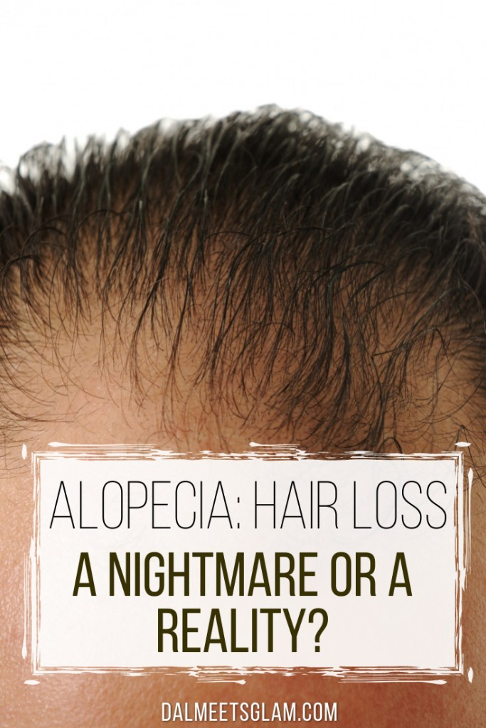 Alopecia: Hair Loss, A Nightmare Or A Reality?
