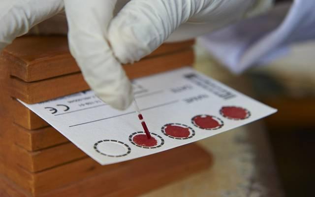 """الصحة: """"PCR"""" مجاني للوافدين عبر """"جديدة يابوس"""" بدءا من الأسبوع المقبل"""