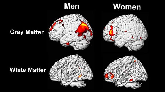 защо мъжете и жените мислят различно 3