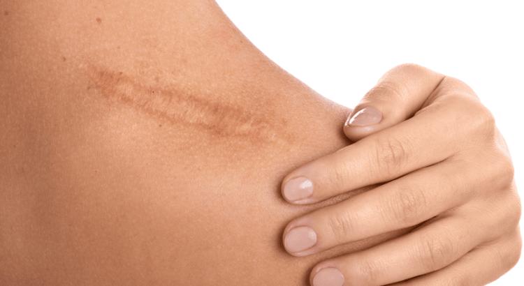 Danforth East Wellness, scar tissue release