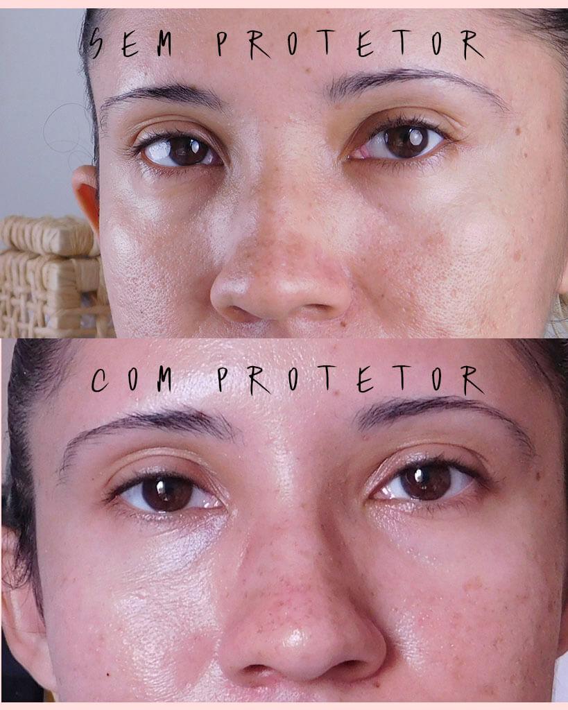 protetor solar antiacne