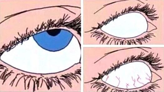 eye roll meme