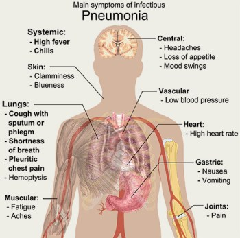 Main_symptoms_of_infectious_pneumonia