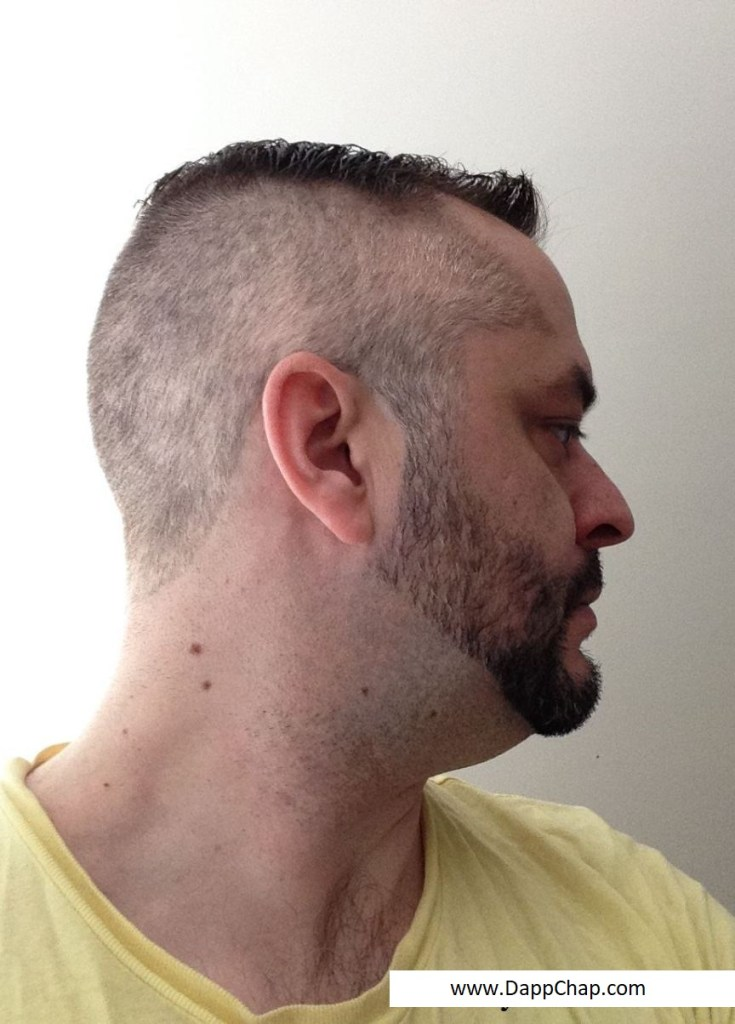 hairstyles for thinning hair