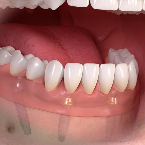 Fixed_restoration_with_4_implants_posterior_tilted_04