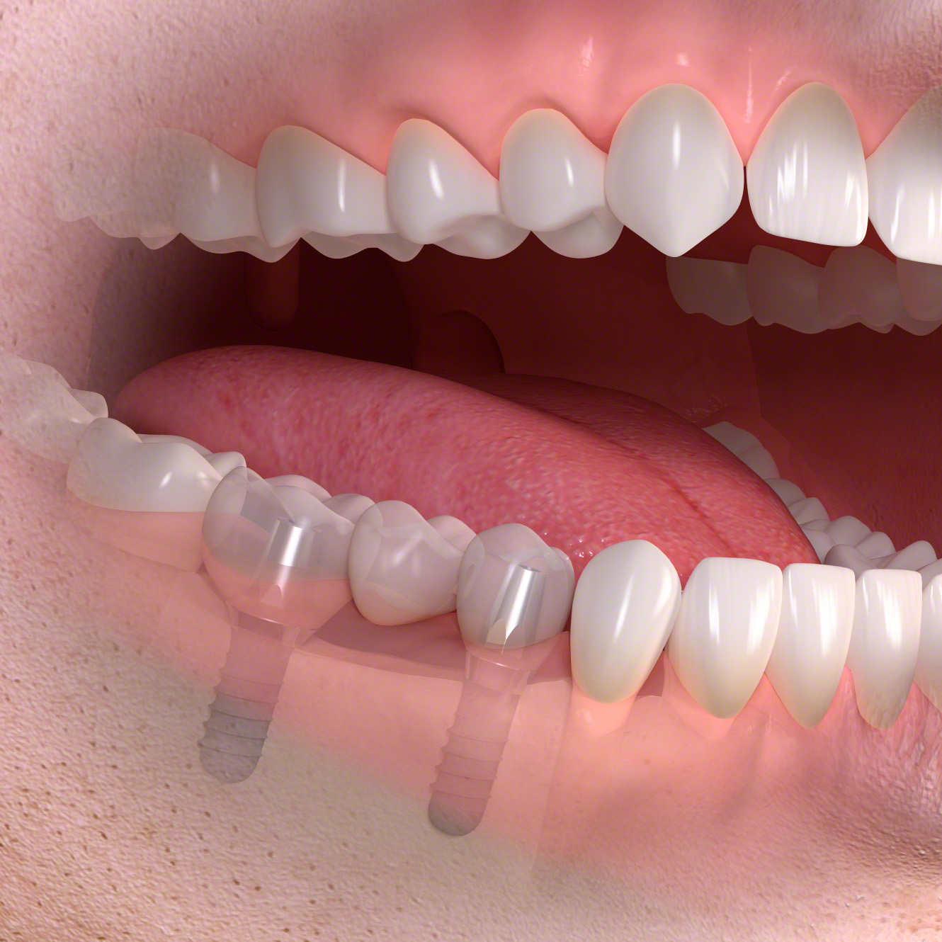 Implant-supported_multi-tooth_treatment_04