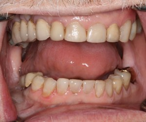 After Cosmetic Composite Fillings