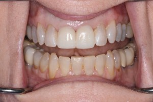 Picture of Teeth after anterior crowns