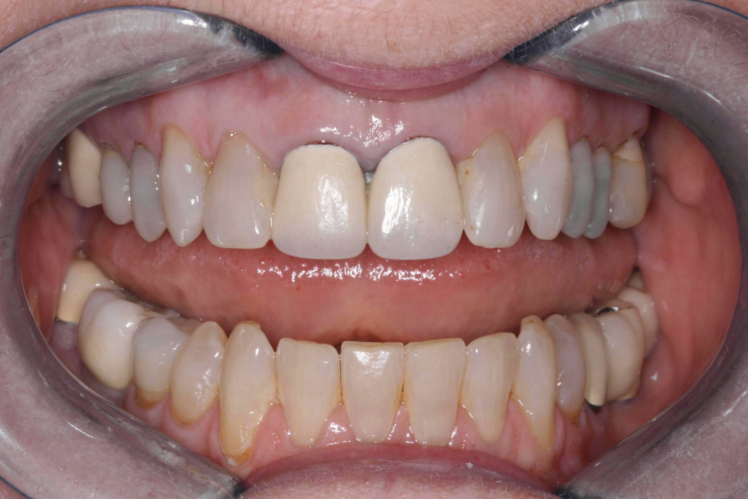 Before Anterior Crowns