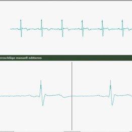 HRV-EKG zur StressmessungHRV-EKG zur Stressmessung, Quelle: Vortex HiFi