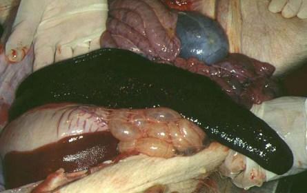 spleen3