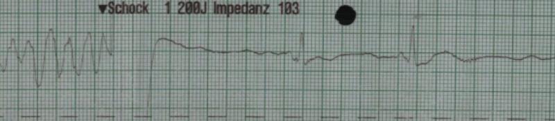 EKGcase1_pic2.png