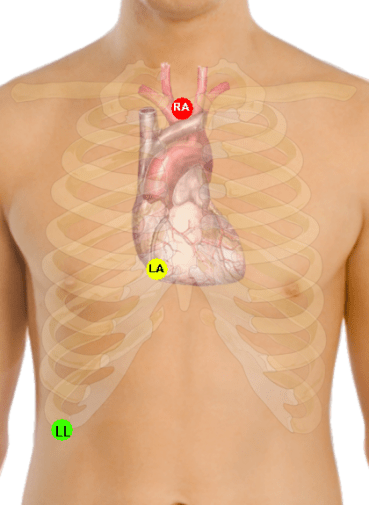 Lewis_lead_placement_EKG