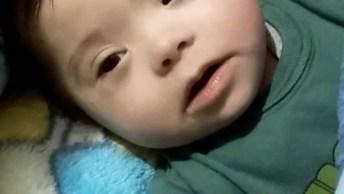 Bebê Com Síndrome Do Amor, Que Coisa Mais Linda Esse Bebê!