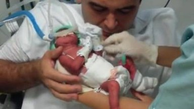Pai Pegando O Filho Pela Primeira Vez, O Bebê Nasceu Prematuro!