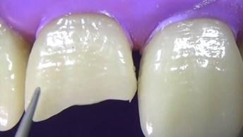 Impressionante Restauração De Dente Quebrado, Vale A Pena Conferir!