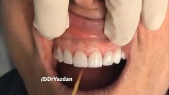 Transformações Impressionantes Em Dentes, Confira Os Resultados!