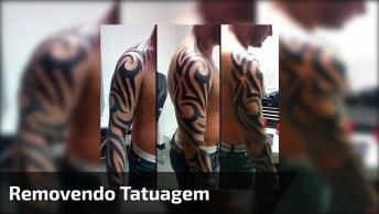 Agora Não Precisa Mais Ficar Com Medo De Arrepender De Tatuagem, Veja!
